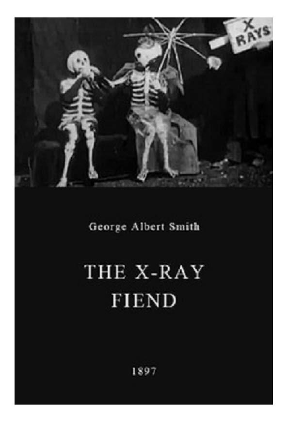 The X-Ray Fiend kapak